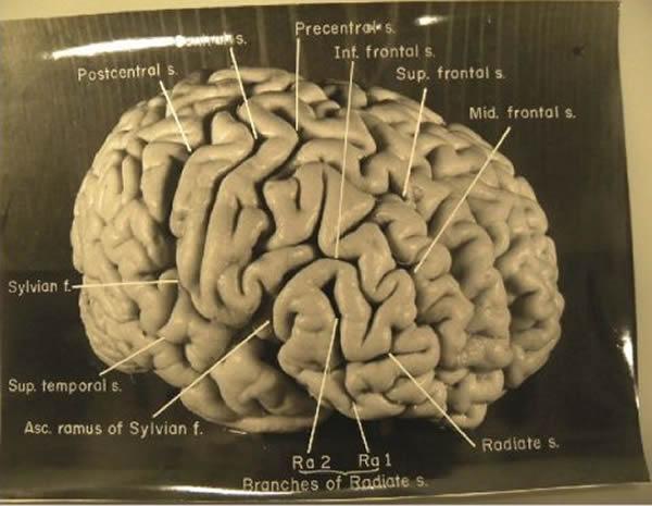 科学 英国 选出/爱因斯坦的独特大脑结构