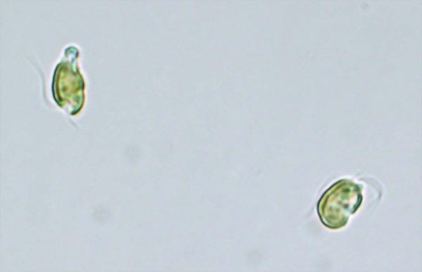 Golden algae is seen in a microscopic image. Picture courtesy of the Florida Fis