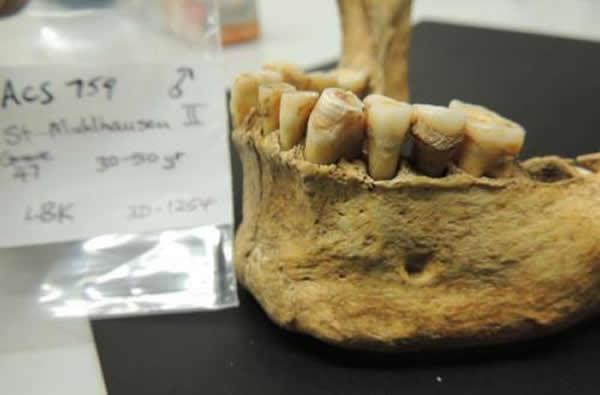 对古人类牙石中保留的细菌DNA的研究