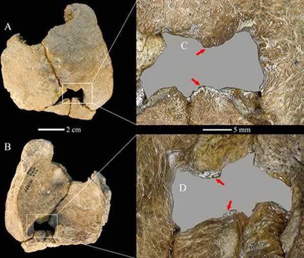 图1. 许家窑11号个体罕见的先天巨顶孔缺陷,外侧面观(A,C)和内侧面观(B, D),箭头示光滑的穿孔边缘. (吴秀杰供图)