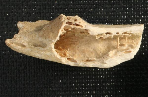 尼安德特人肋骨化石上发现迄今为止最古老的肿瘤