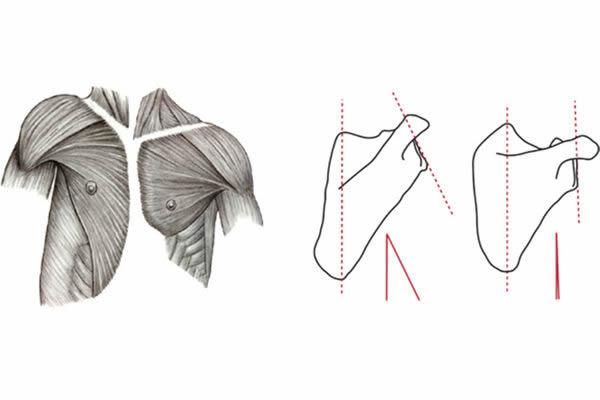 这两张图片显示黑猩猩(两幅图的左边)与人类(两幅图的右边)肩膀位置肌肉和骨骼的差异。