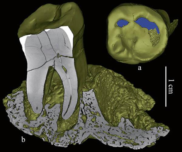 智人I号标本3D复原图像,a咬合面观,示牙齿磨耗程度;b冠状面切片,示齿槽牙周病。(吴秀杰供图)