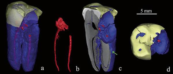 智人II号标本CT扫描3D复原图像,a、b中红色示断裂的齿槽管;c为冠状面切片示,牙骨质增生部位内部结构;d为咬合面观,示牙齿磨耗程度。(吴秀杰供图)