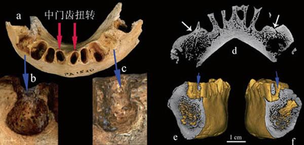 智人III号下颌骨病理及异常。(吴秀杰供图)