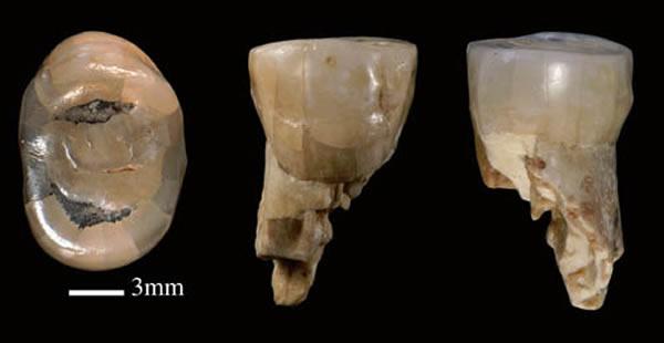 新发现的和县直立人上第三前臼齿(P3),从左至右依次为咬合面、颊侧和舌侧视图(邢松供图)