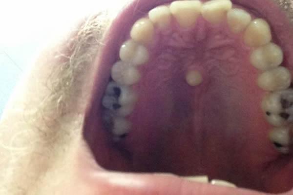 一名男子的口腔上颚居中的部位竟然长出一颗牙齿