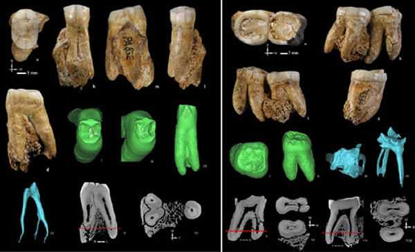 和县人牙齿釉质、齿质、髓腔形态特征(邢松供图)