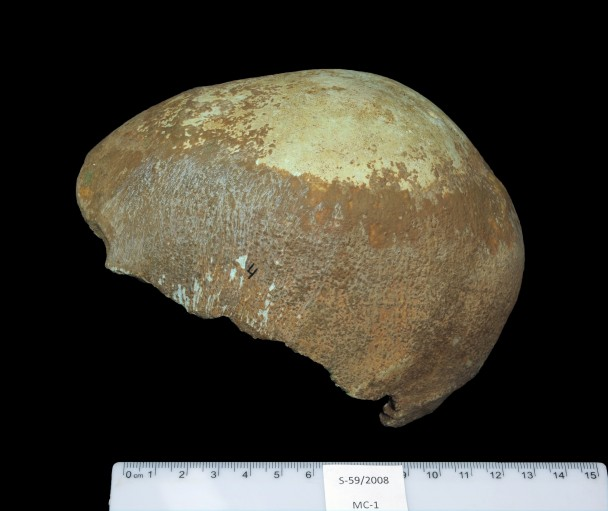头骨缺少面部特征和底部