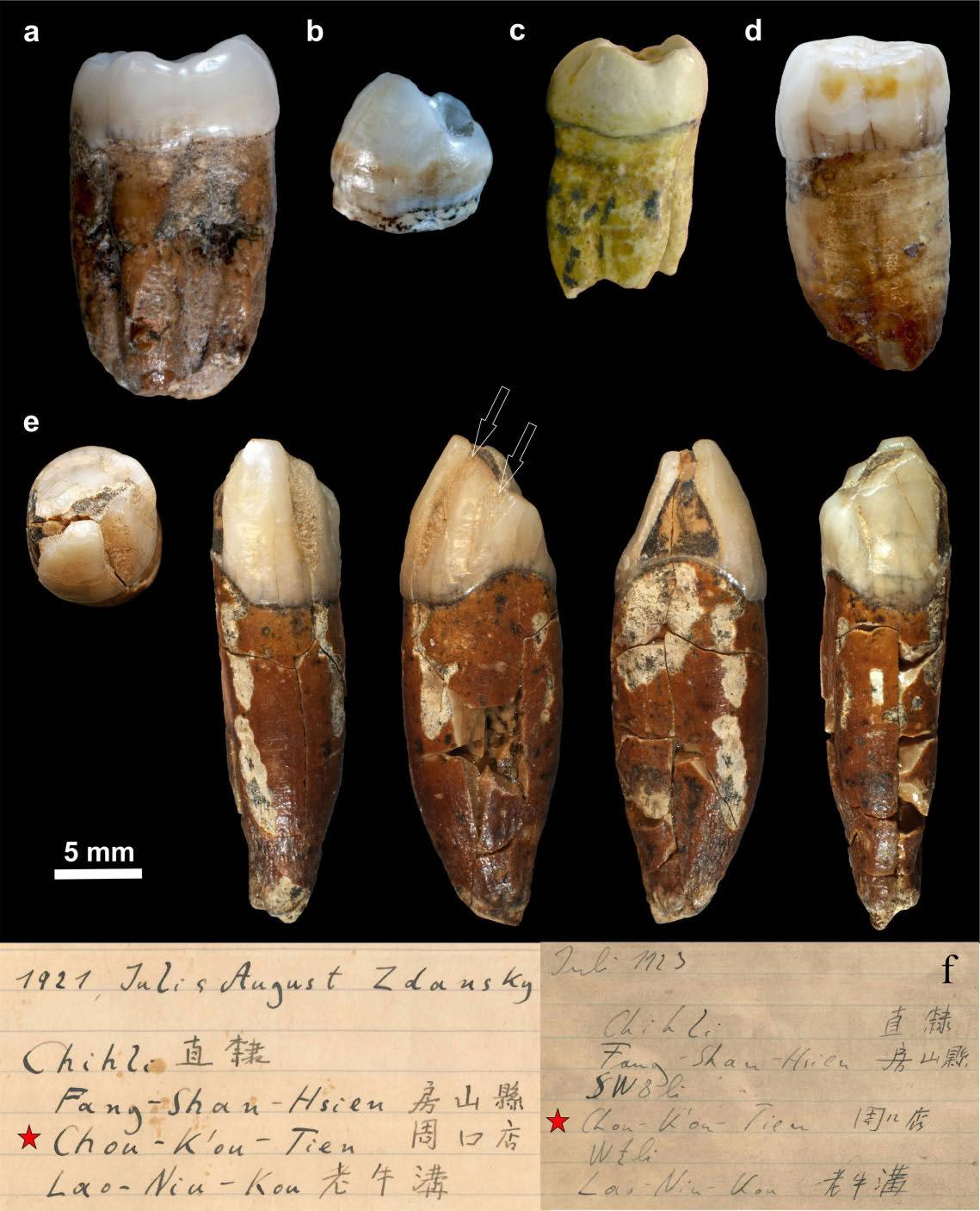 最早在周口店发现的5 枚北京直立人(Homo erectus pekinensis)(北京人)牙齿