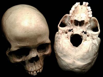 脑洞大开:人类头颅中让两条主动脉通往大脑的洞300万年来扩大了6倍