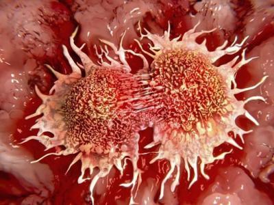 美国德州大学发表新研究 成功以微波加热杀死癌细胞