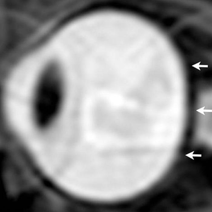 太空人眼部的核磁共振图。在长期的太空生活之后,太空人的眼球出现被挤压扁平的状况。 PHOTOGRAPH BY RSNA