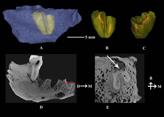 通过CT扫描复原展示包埋在下颌骨内部的第四前臼齿齿根呈现复杂的双根型结构(刘武供图)