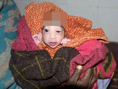 印度女婴头长巨瘤皮肤如鳞 遭母嫌弃拒喂奶