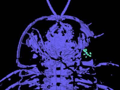 化石证据显示三叶虫的生殖器在头部