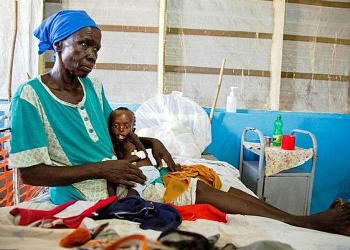 南苏丹一个11个月大严重营养失调的男婴,依在祖母怀抱。