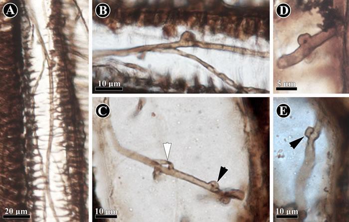保存在科达茎干(Shanxioxylon sp.)初生木质部中的担子菌类菌丝。(黑色箭头指示锁状联合结构)