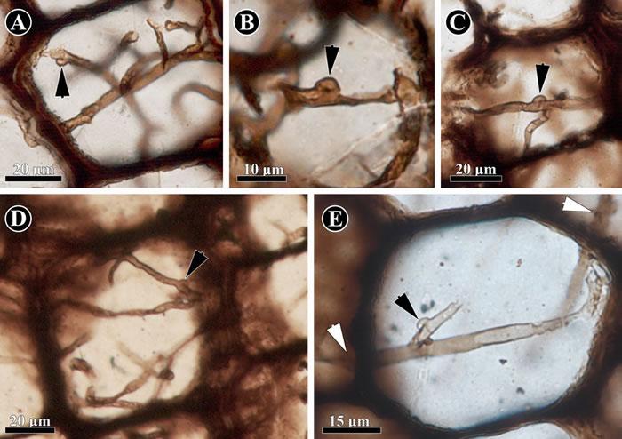 保存在科达茎干(Shanxioxylon sp.)髓部细胞中的担子菌类菌丝。(黑色箭头指示锁状联合结构)