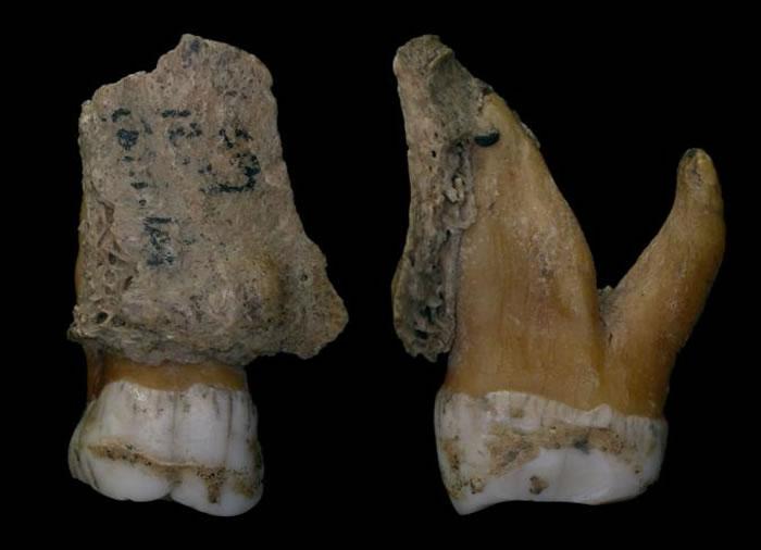 尼安德特人的牙齿特写,显示牙结石在牙釉质上形成一层外壳。 PHOTOGRAPH BY ROYAL BELGIAN INSTITUTE OF NATURE SCI