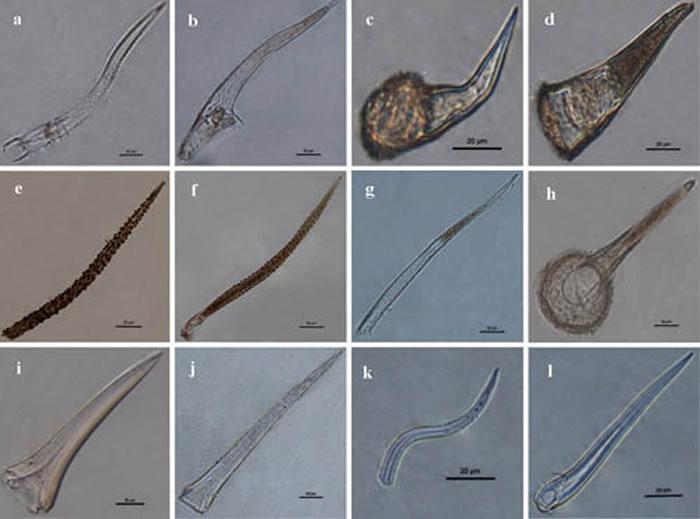 图3 黑色残留物中毛细胞植硅体形态源自紫草科叶子(吴妍供图)