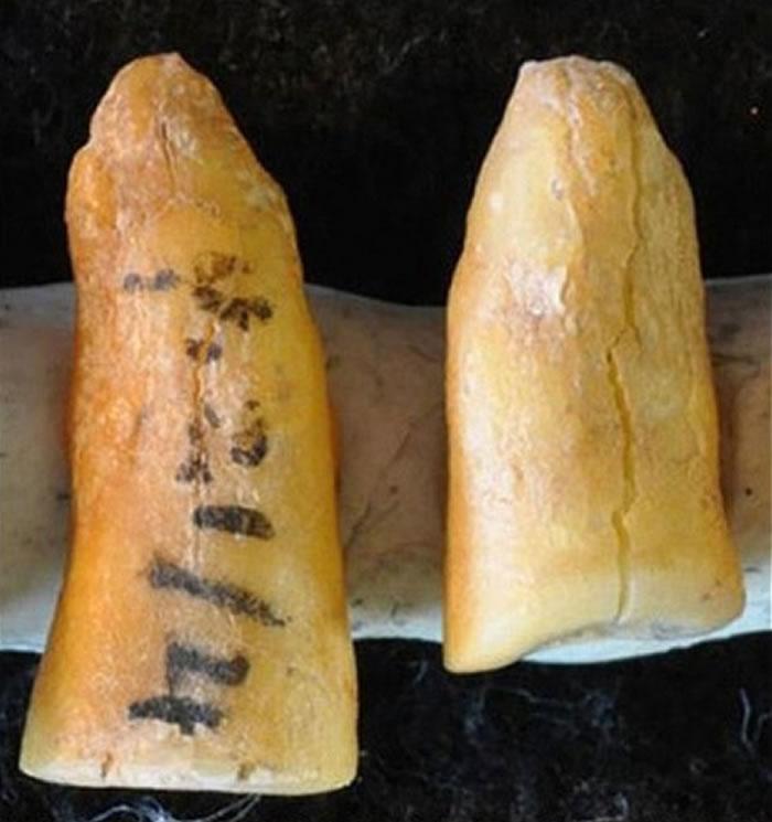 图为在意大利出土的古人牙齿。
