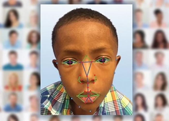 脸部侦测技术软件可辨别出罕有遗传病。