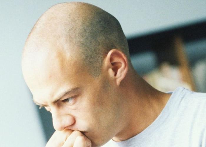 秃头者福音!美国加州大学科学家发现免疫细胞Tregs刺激毛发生长