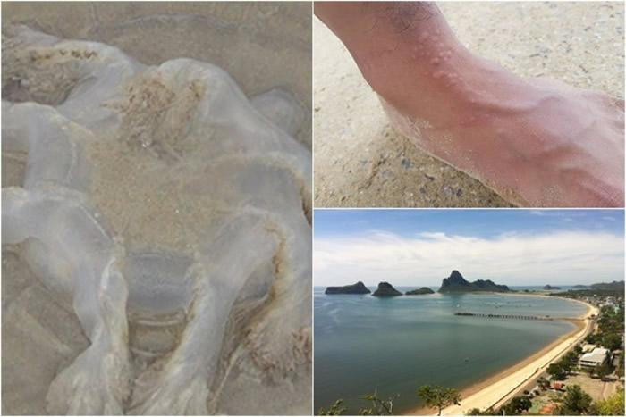海滩出现大量海刺水母(左图);有游客被蛰伤(右上图)。