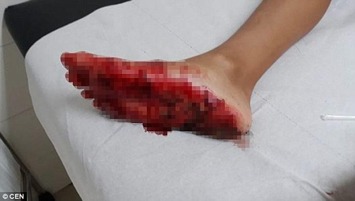 西班牙男童海滩游泳时疑遭鲨鱼咬脚惹恐慌