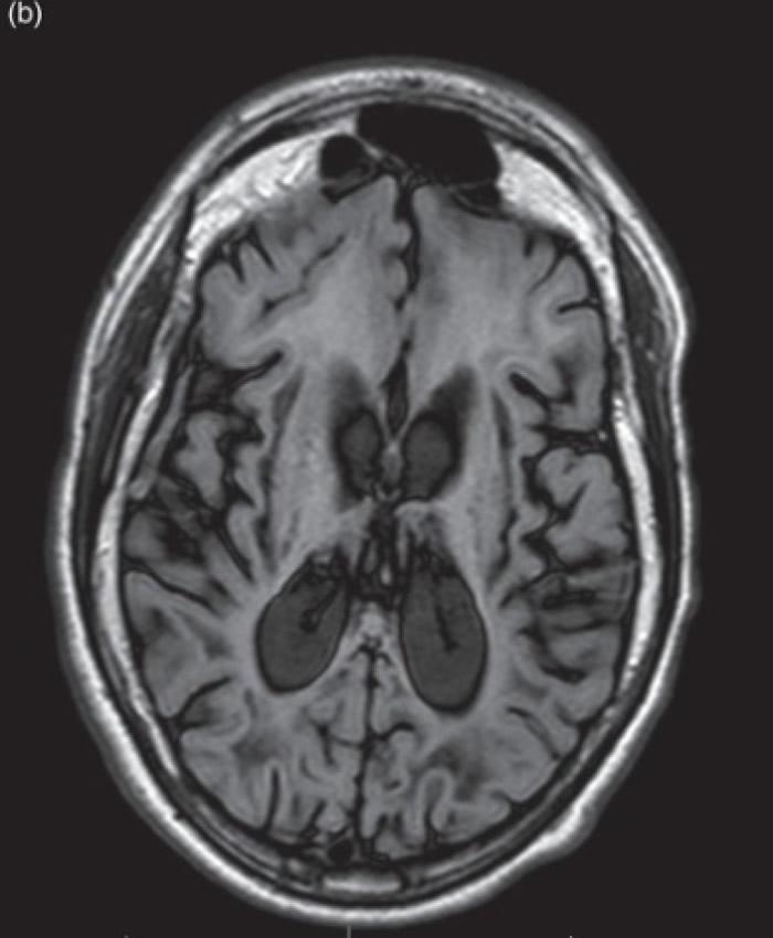 肾上腺脑白质退化症患者的脑部影像。