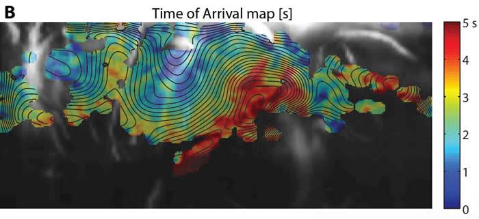 科学家设计一种可以直接对婴儿脑部活动进行成像的便携式床边脑扫描仪