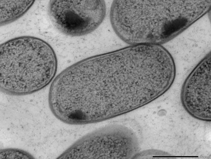口腔可能是引起肠道疾病细菌的枢纽