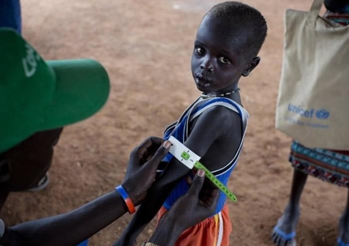 南苏丹大部分人长期处于饥饿状态。