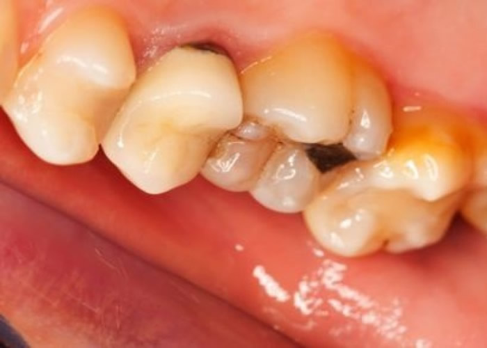 进餐时饮用带酸性饮料,均会磨损牙齿并会捐害牙齿的珐琅质。(资料图片)