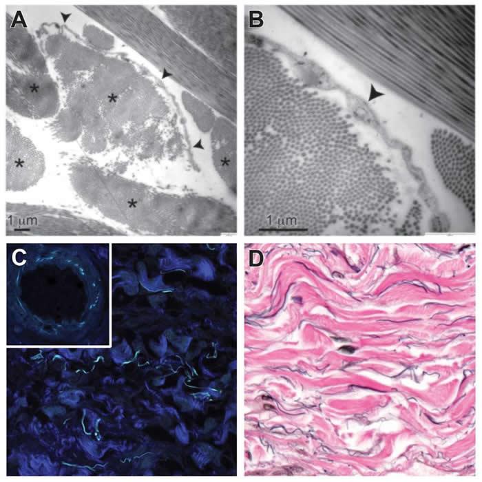 间质的胶原蛋白束以星号标记(上图左);箭头指向其中一个细胞(上图右);深蓝色的是胶原蛋白束,而浅蓝色的则可能是弹性蛋白(下图左);染成黑色的弹性蛋白纤维沿着染成