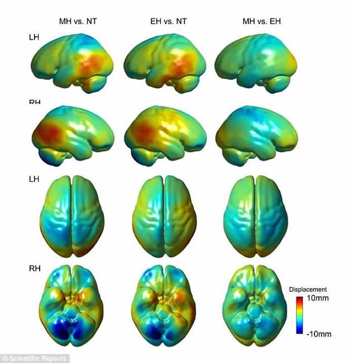尼安德特人大脑中与语言和社会活动相关的小脑分区相对较小可能是他们灭绝的原因