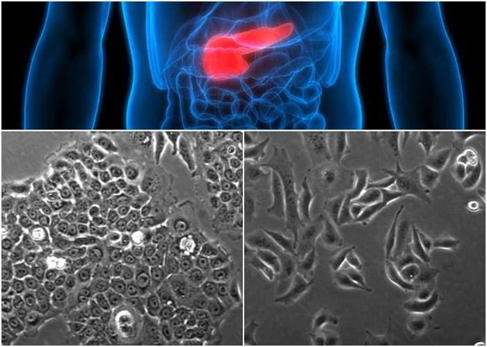 科学家声称将癌细胞中的小分子核糖核酸移除后(左下图),能够提高化疗的效率。右下图为未移除小分子核糖核酸的癌细胞。