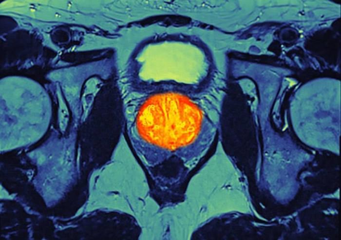 英国医疗专家着手研究新型免疫治疗药物 可有助舒缓末期前列腺癌病情