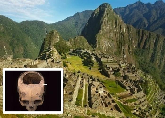 美国科学家研究秘鲁古印加帝国时期古印加人头颅骨 开颅技术胜美内战时期