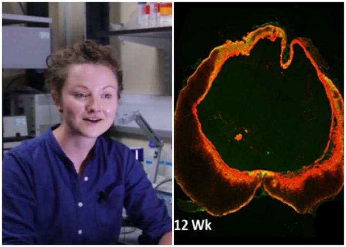 伯恩塞德(左图)研究基因疗法,让脊椎受损老鼠的脊髓细胞自我修复。