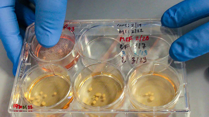 Alysson Muotri的实验室生长了这些由人类干细胞培育而来的大脑,这些干细胞有一个发育基因被编辑为尼安德特人曾经拥有的版本。