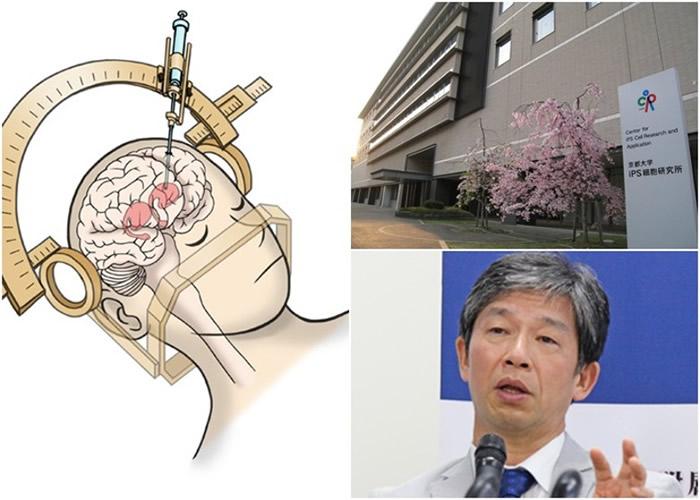 研究员以iPS细胞制成的神经元细胞,注射入柏金逊症患者的脑内。