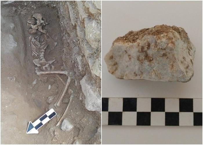 童尸(左图)口中的石块(右图)。