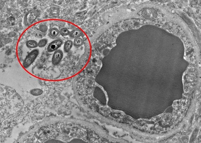 研究人员在大脑组织切片的血管旁,发现肠道细菌(红圈)。