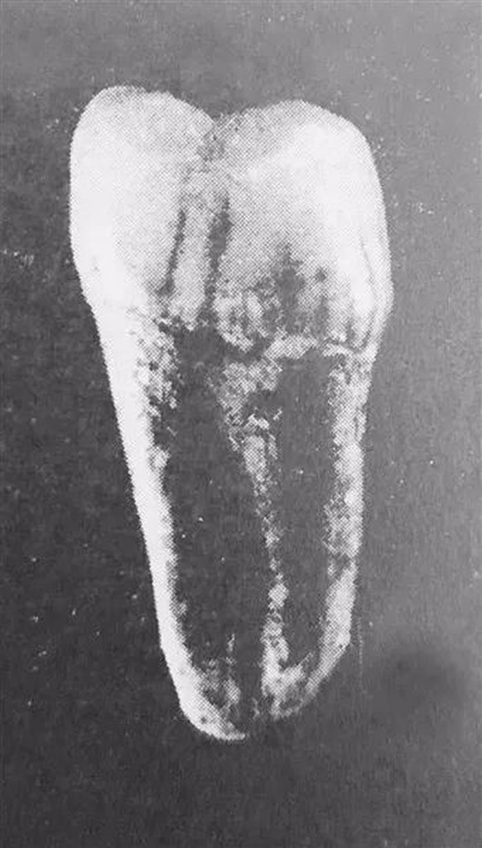 """""""南召猿人""""发现记:中药材里发现人类祖先的一颗牙齿"""
