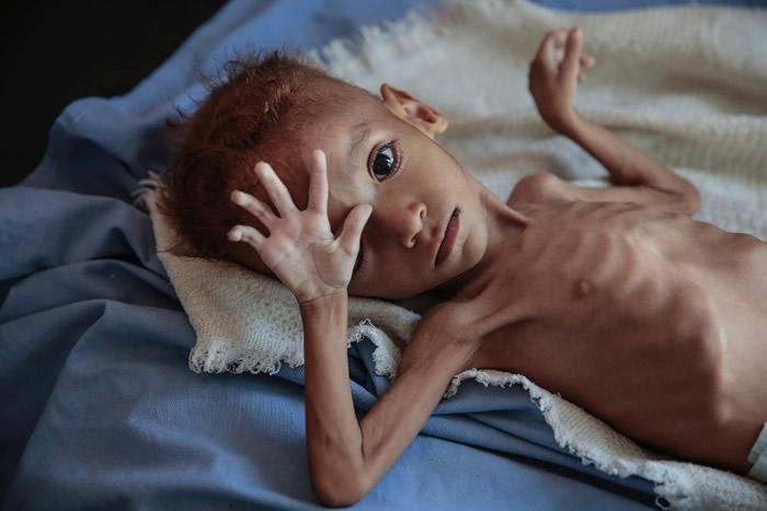 不少儿童饱受饥荒。