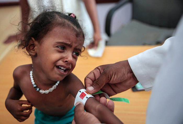 也门儿童营养不足。