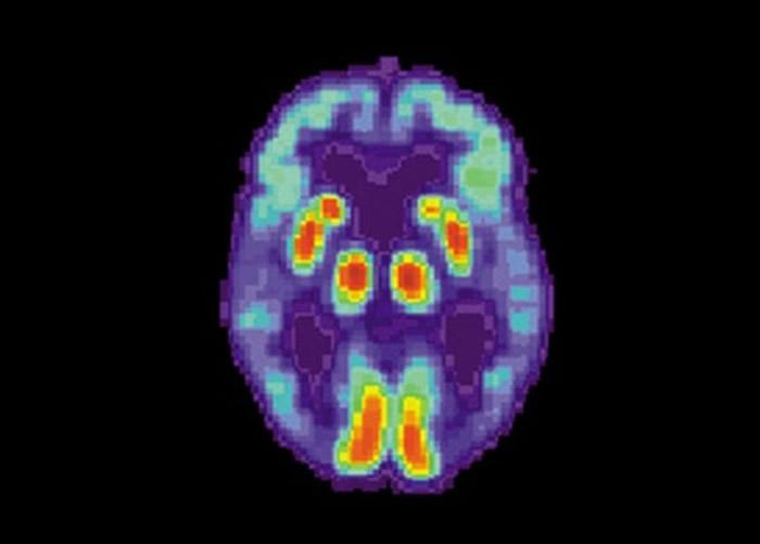 团队利用PET影像做研究。
