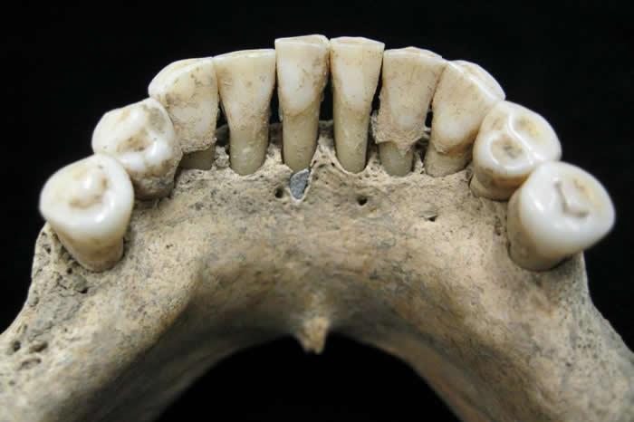 珍贵的蓝色青金岩碎粒卡在一位中世纪女性的牙结石里。 PHOTOGRAPH BY CHRISTINA WARINNER